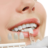 Dental Veneers and Dental Laminates