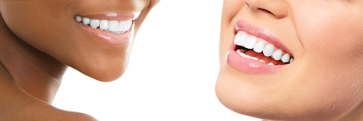 Indianapolis Teeth Whitening